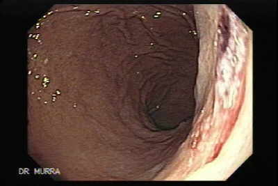 Mallory-Weiss tears occurring during endoscopy