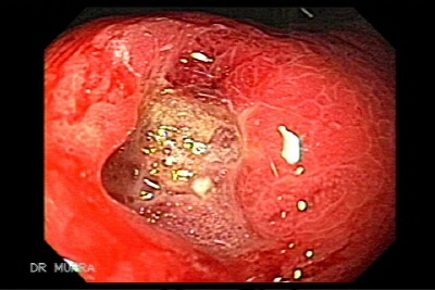 Gastric Cancer diffuse type with cells signet ring