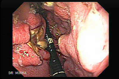 Endoscopic appearances of MALT lymphoma.