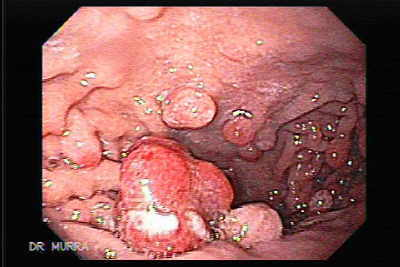 Endoscopic Appearance of Gastric Polyposis
