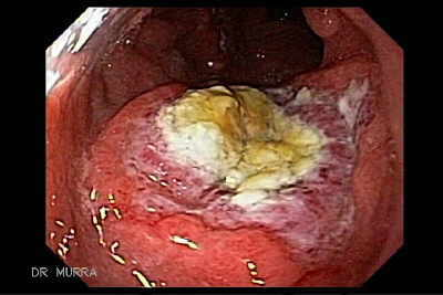 Endoscopy of Malt Lymphoma