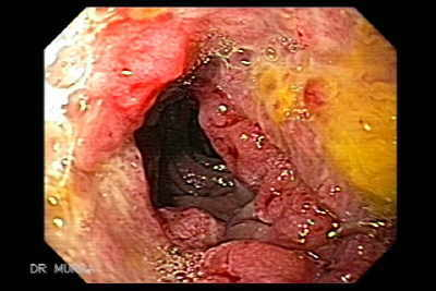 Intestinal involvement is most common, particularly of the