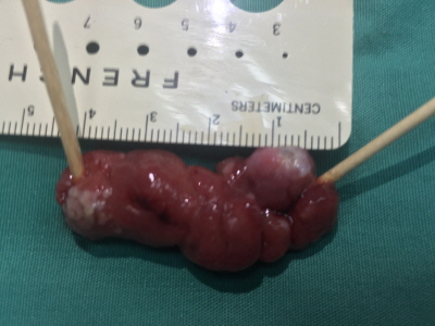 Giant Gastric Polyp