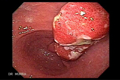 Giant Gastric Hyperplastic Polyp