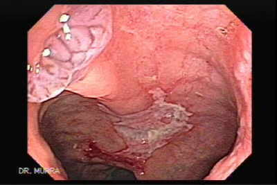 Endoscopy image of of Histoplasmosis of the Colon and Condyloma Accuminata