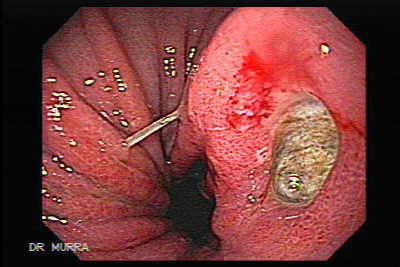 Endoscopic Image of Hourglass Stomach.