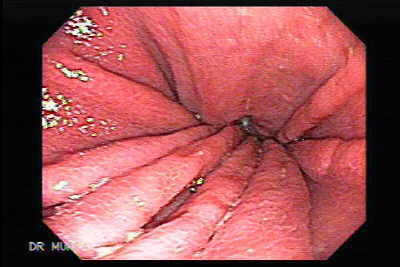 Endoscopy of of Hourglass Stomach
