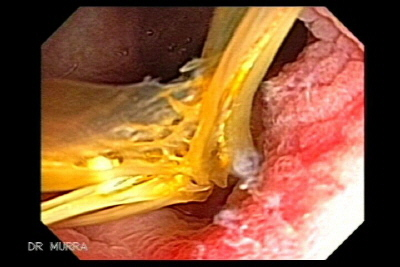 Diverticulitis due to Fish Bone