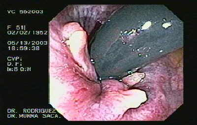 Anal fissure Retroflexed Image.