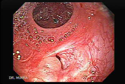 Videoendoscopy of uretero-enteric anastomosis