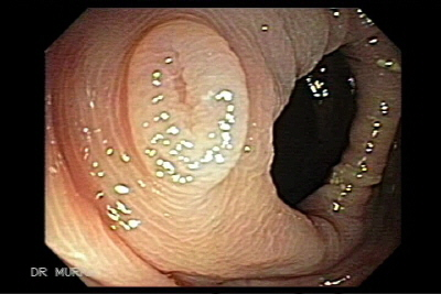 Inverted Colonic Diverticula