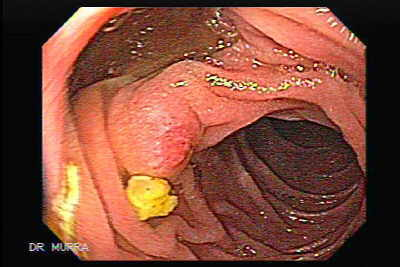 Endoscopic View of Duodenal Diverticula.