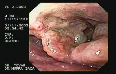 Squamous cell carcinoma of the larynx.  We used a regular endoscopy forceps biopsy device to get the biopsies of the larynx cancer.