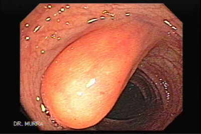 Colonic Lipoma