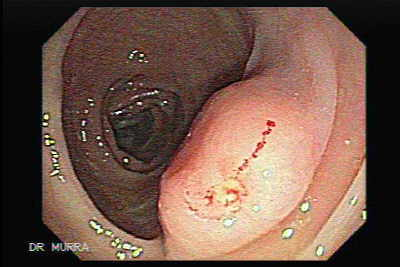Lipoma of the sigmoid