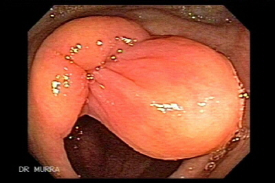 Colonoscopy of Ileocecal Valve Lipoma