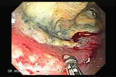 Lymphoma of the Colon.