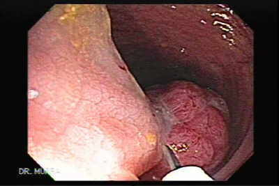 Colonoscopy of Giant polyp polypectomy