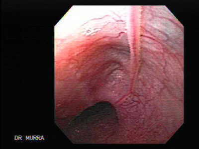 Esophageal Mucosal Bridge.