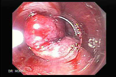Early Gastric Cancer of the Gastroesophageal Junction