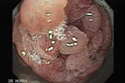 Endoscopy of Giant Multilobulated Gastric Polyp with Large and Wide Stalk.