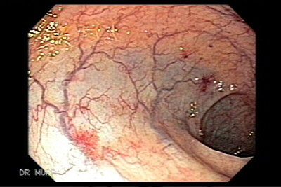 Multiple Colonic Angiodysplasias
