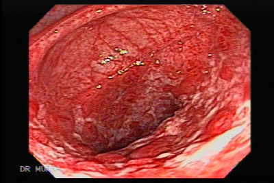 Colonic lymphoma