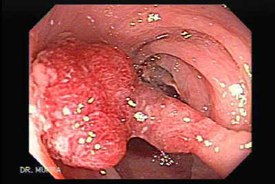Endoscopic Image of Tubular Adenoma on a Long Stalk.