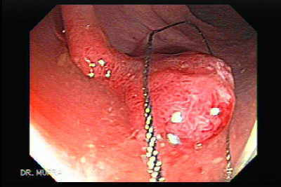 Endoscopic snare excision of large pediculated polyp.