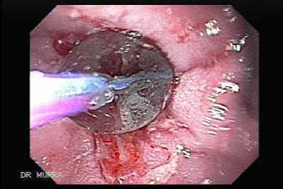 Endoscopy of Esophagusl Dilation
