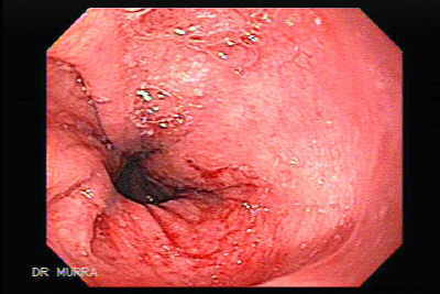 Endoscopy of Esophageal Dilation.