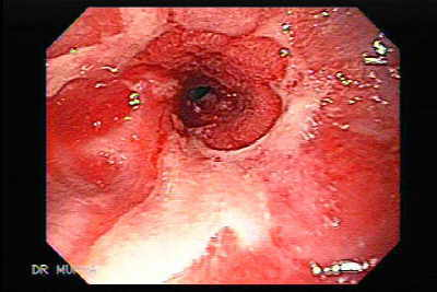 Endoscopy of Peptic Stenosis due to a Reflux Esophagitis