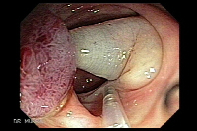 Achieving a more complete resection; and diminishing the risk of complications such as perforation, bleeding and transmural burn. Thus, it is also reasonable to use IAP for any polyp that is flat, regardless of its size. By raising the polyp from the submucosa a deeper and more complete resection of the neoplastic tissue can be achieved. In addition, by lifting the submucosa from the deeper layers of the gut wall, the depth of injury is decreased by avoiding the burn at the muscularis propria and serosa. However, submucosal injection even with a large amount of fluid may not avoid perforation if overly large pieces of the polyp are ensnared and resected. Multiple substances are commercially available to perform an IAP.