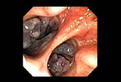 Nasopharynx. Observed through trans-fistula-gastrostomy retrograde