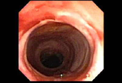 The part of the esophagus that was dilated, patient has a hiatal hernia.
