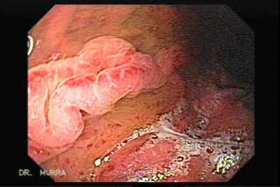 Endoscopy of Portal Hypertensive Gastropathy.