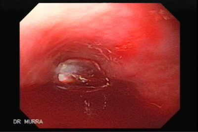 Endoscopic variceal ligation