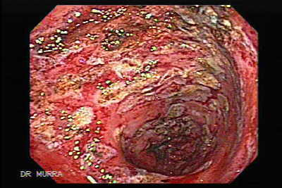 Post-irradiation colitis