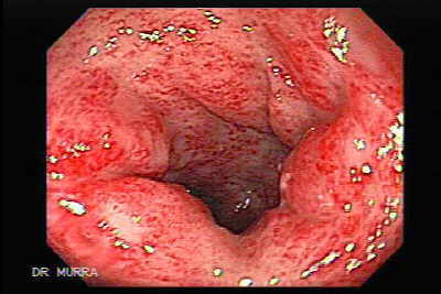 Endoscopic view of Post-irradiation proctitis