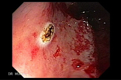Radiation Colitis