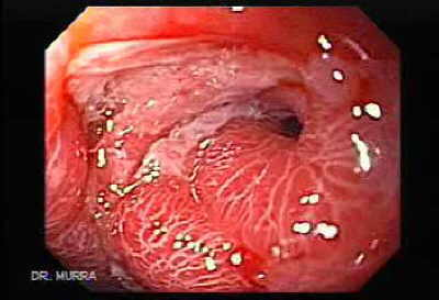 Gastric antral stenosis: complication of acid ingestion.