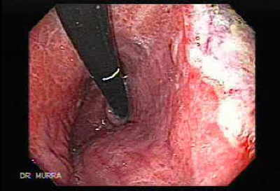 Endoscopy of Gastric antral stenosis: complication of acid ingestion