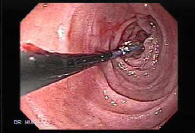 The duodenum is observed with normal mucosa.