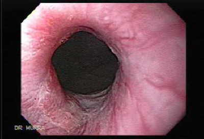 The esophageal mucosa is resistant to damage, following the ingestion of corrosive acid.