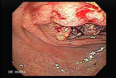 Bleeding is the most common symptom of rectal cancer,