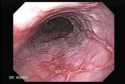 Endoscopy of Obstructed Gastric Cancer