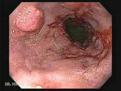 Reflux esophagitis with a esophageal squamous cell papilloma.