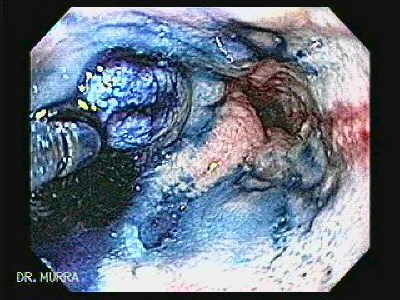 Endoscopy of Reflux Esophagitis