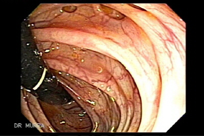 Colonoscopy in Retroflexion of Diverticulae