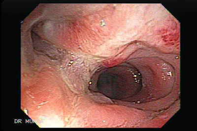 Colonoscopy of a Diverticular Colitis